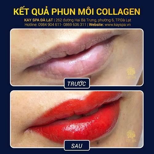 Phun môi Collagen tại Kay Spa Đà Lạt