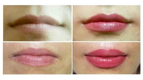 Trước và sau khi phun môi collagen tại địa chỉ phun môi Kim Ty Spa Salon