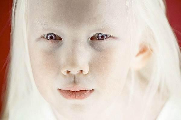 10 căn bệnh do đột biến gen nguy hiểm ở người cần đặc biệt lưu ý