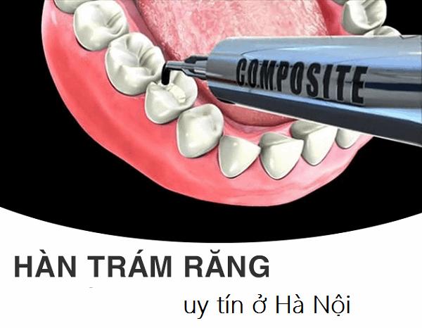 Review top 10 địa chỉ trám răng uy tín ở Hà Nội cùng giá tham khảo