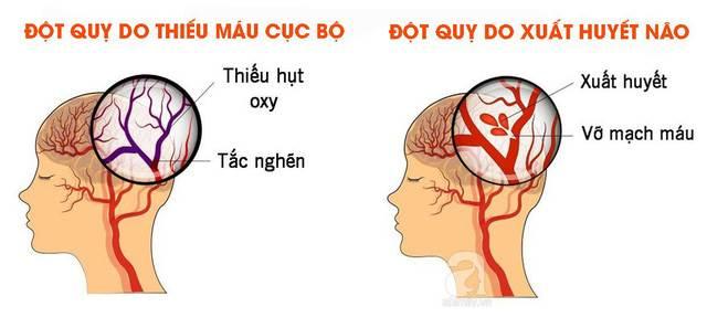 Bệnh tai biến mạch máu não (đột quỵ)