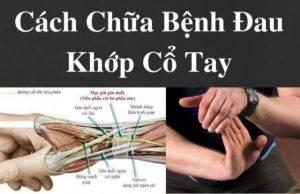 22 cách chữa đau khớp cổ tay tại nhà an toàn, hiệu quả nhất