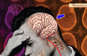 15 cách chữa đau nửa đầu bên trái hiệu quả an toàn không cần thuốc