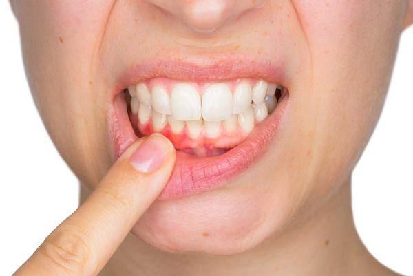 Đường có thể gây ra bệnh nướu răng, có thể dẫn đến bệnh tim