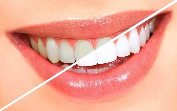 Review tẩy trắng răng có hại không – Kinh nghiệm tẩy trắng răng 2019