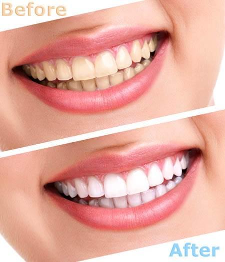 Tẩy trắng răng được bao lâu?