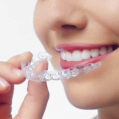 Phương pháp tẩy trắng răng bằng máng tại nhà
