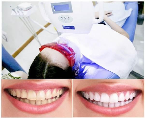 Phương pháp tẩy trắng tại phòng khám